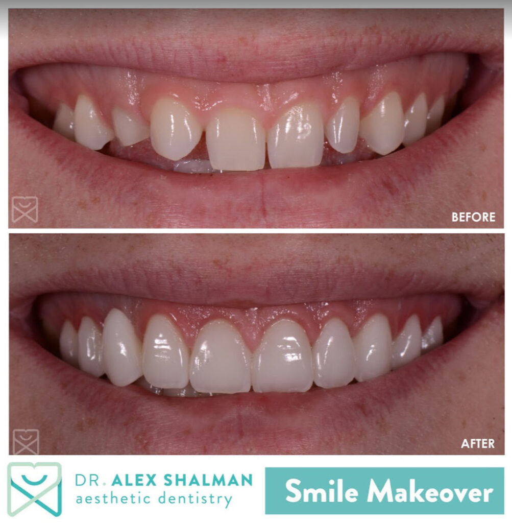 smile makeover / before - after