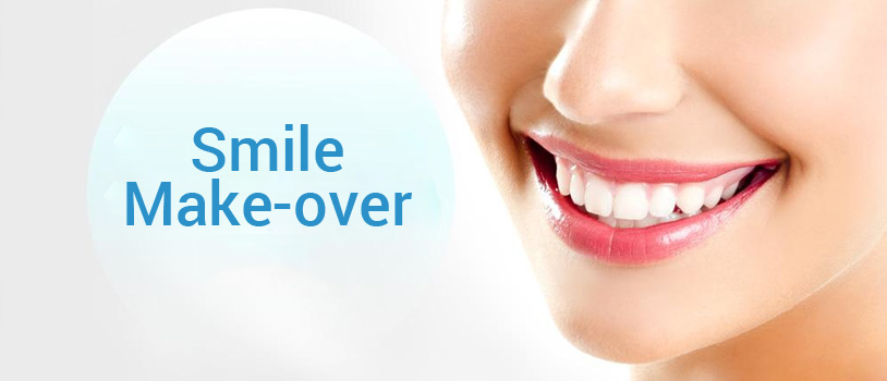 NYC Smile Makeover dentist in Downtown Manhattan