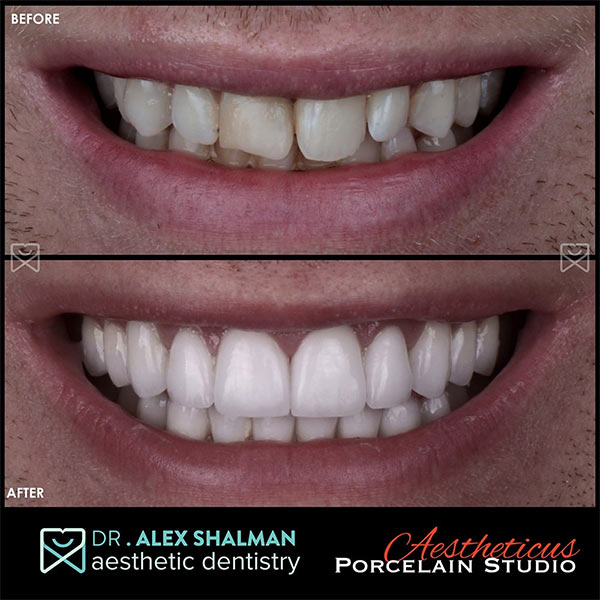 smile makeover nyc dentist
