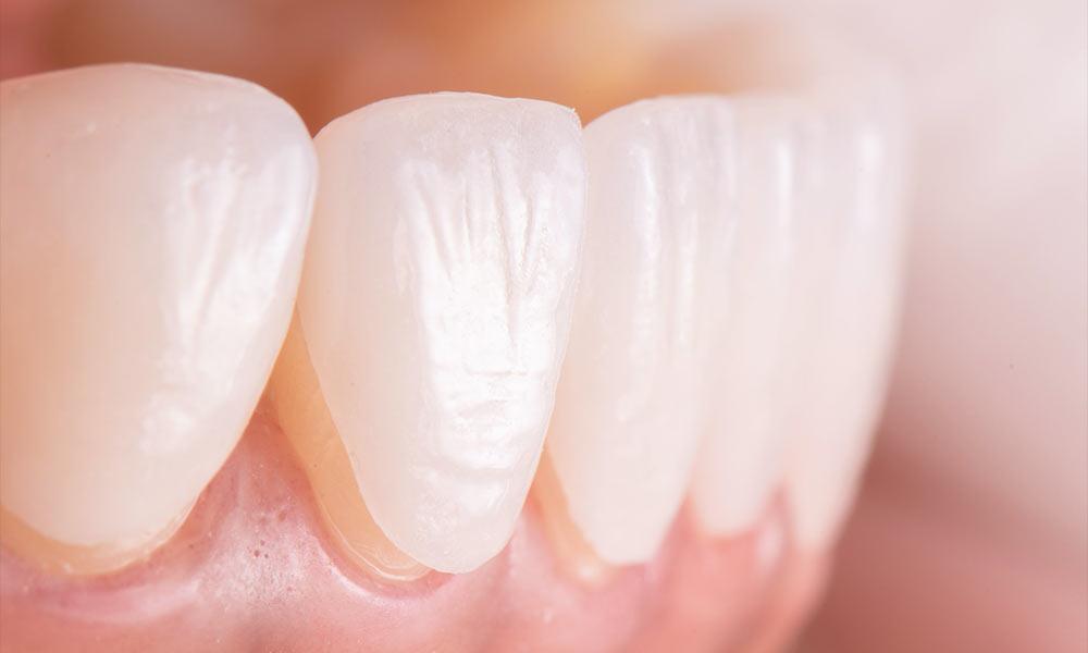 porcelain veneers NYC dentist